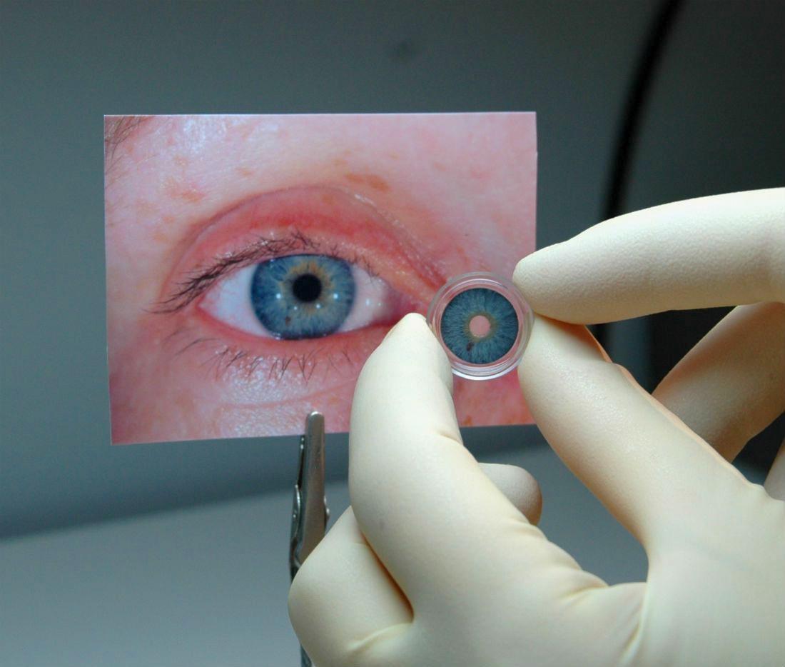 Approvata la prima iride artificiale negli USA