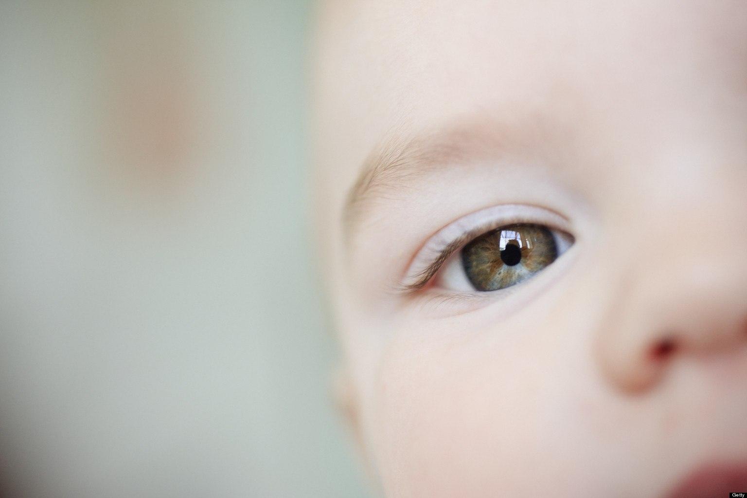 Uno sguardo alle protesi oculari pediatriche